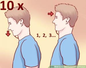 Forward Head Posture fix full Review