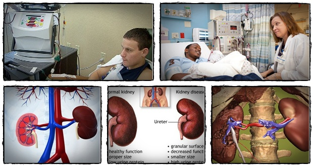 kidney disease solution program